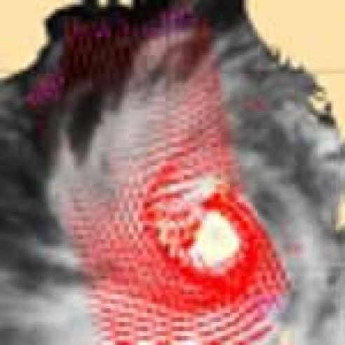 Tropical Cyclone Nargis strikes Myanmar