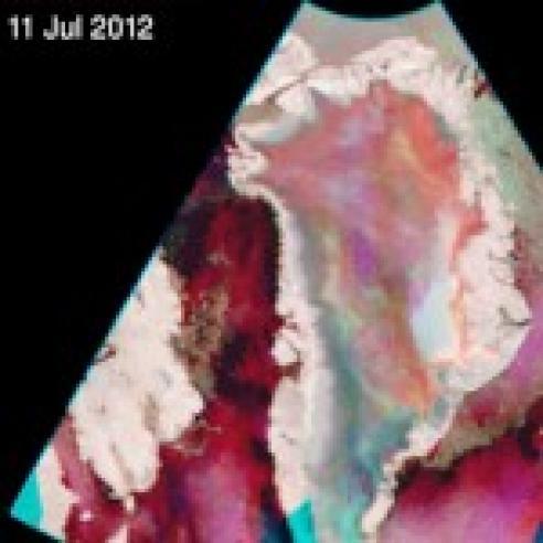 Extreme Greenland ice sheet melt